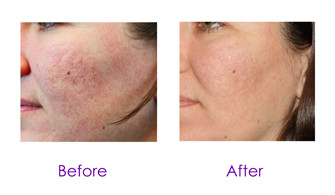 Micro-needling in Tucson, Arizona