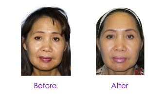 Chemical peels in Tucson, Arizona